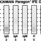 Detection and classification of paraproteins by capillary immunofixation/subtraction