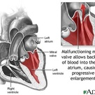 Diagram of mitral valve prolapse