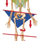 EDS: In the case of pelvic tilt resulting from muscular dysfunction, if shortness persists long enou