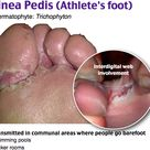 Tinea Pedis (Athlete's Foot)