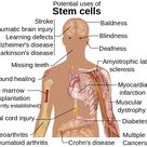 Stem cells transplants is a satisfactory answer to all these conditions.