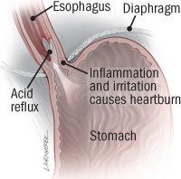 Proton-Pump Inhibitors (PPI) prescribed for Acid Reflux can lead to Fatigue. Solutions: 1. 400 mg Ma