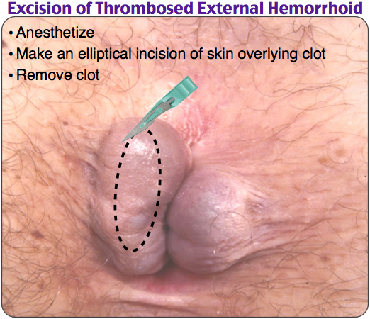 Excision of Thrombosed External Hemorrhoid