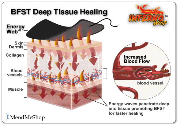 the healing process of a soft tissue injury