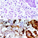 Calretinin positive cell membranes and papillary structures