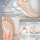 Learn what is plantar fasciitis and how to get rid of the foot pain plantar fasciitis causes