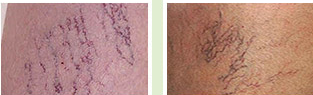 Don't be embarrassed due to vein disorders. Vein removal technology is here. Vein removal technology