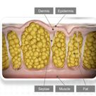 Health Check: what is cellulite?