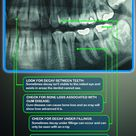 Reasons Why Dentists Take X-RAYS  West Chester Dental Arts   403 N. Five Points Road West Chester, P
