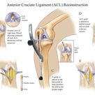 Anterior Cruciate Ligament (ACL) Reconstruction - Compel Visuals