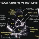 Aortic Valve Level TEE
