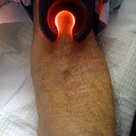 Vein Light Technology And IV Access In The Hospital: A Detailed Look