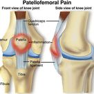 One of the most common types of knee pain, Patellofemoral pain syndrome refers to pain at the front