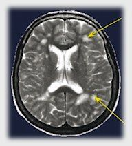 White Matter Lesions Related to Migraine