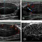 WK 2 BREAST Juvenile fibroadenoma in the left breast of an 18-year-old woman. A) A gray-scale image