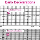 This article is about how to monitor fetal heart tone of early, late.