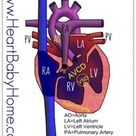 Congenital heart defect - Complete AV Canal defect, and add a hypo plastic right ventricle