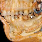 After the removal of an outer layer of bones around the jaw, the dissection shows blood vessels and