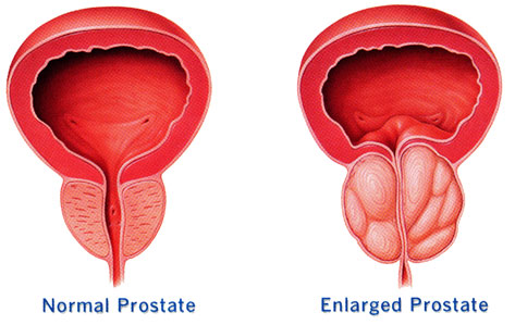 Prostatitis is the swelling of the male sexual prostate gland.    Symptoms: Pain in the lower abdome