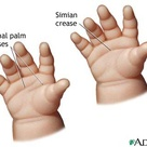 Simian Crease: Hand Distinctions for Trisomy 21.