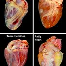 Pathology of the heart