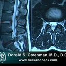 How to Read a MRI of a Lumbar Herniated Disc   Lower Back Pain   Colorado Spine Surgeon