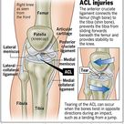 ACL Injuries - acl-tear
