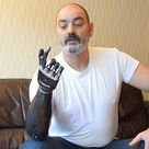 Medical technology of a prosthetic device: robotic hand.