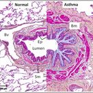 The histopathology of asthma is characterized by a number of structural changes