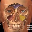 What is acute sinusitis?Acute sinusitis are infection of sinuses.