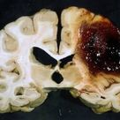 Autopsy photograph showing a cerebral haemorrhage. When blood cells rupture within the brain it almo