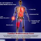 Signs and Symptoms of Familial Mediterranean Fever (FMF)