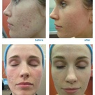 Before and after CO2 laser treatment