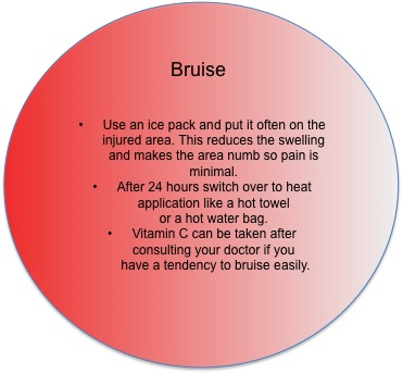 First Aid Tips: What to do in case of a bruise