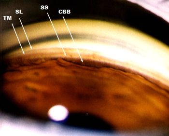 Actual gonioscopy view of anterior chamber angle.