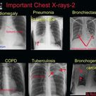 Important Chest X-rays
