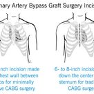 Coronary Artery Bypass Graft (CABG) Surgery Incisions