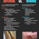 Arterial vs venous