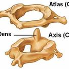 altas axis of the cervical spine. When out of alignment can cause your thinking to be unclear. Chiro