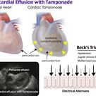 Pericardial Effusion with Tamponade Rosh Review