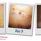 Liposuction:  Before and After photos Dr Vodder Manual Lymphatic Drainage.  Day one photo was taken
