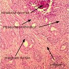 Invasive ductal carcinoma (IDC) is the most common type of breast cancer