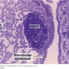 Lung - showing a collection of lymphocytes in the connective tissue of the bronchiolar mucosa, an ex