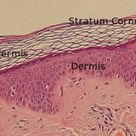 You can see very clearly the top layer of the skin, the stratum corneum, the epidermis populated wit