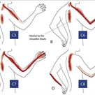 referred neck pain patterns c7 diagram