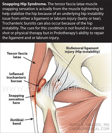 snapping hip syndrome treatment