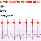 Atrial Fibrillation with Rapid Ventricular Heart Rate