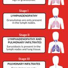 The Stages of Pulmonary Sarcoidosis