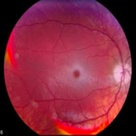Cherry Red Spot on Macula Tay-Sachs and Niemann-Pick lysosomal storage diseases.