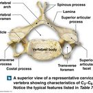 Major components of a typical vertebrae and the vertebral canal.
